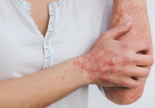PSORIASIS: SYMPTOMS, TYPES AND TREATMENT